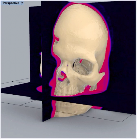 From Medical Images to CAD: A single streamlined workflow enables you to create manufacturable and 3D-printable designs directly from medical images.